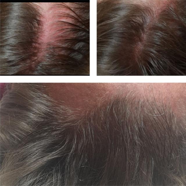 Kosmetikleistungen in Möglingen - Kopfhaut-Pigmentierung